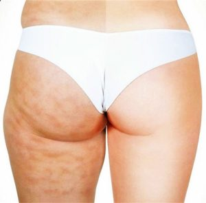 remove cellulite from thighs and bum