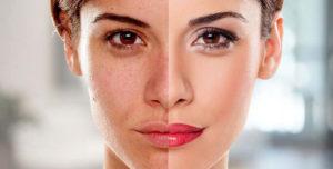 3 days skin whitening fast permanent
