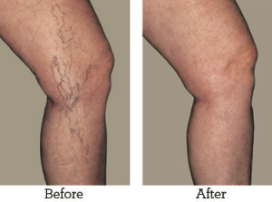 best cream for varicose and spider veins
