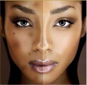 Best Dark Spot Corrector For African American Skin In 2021 Update