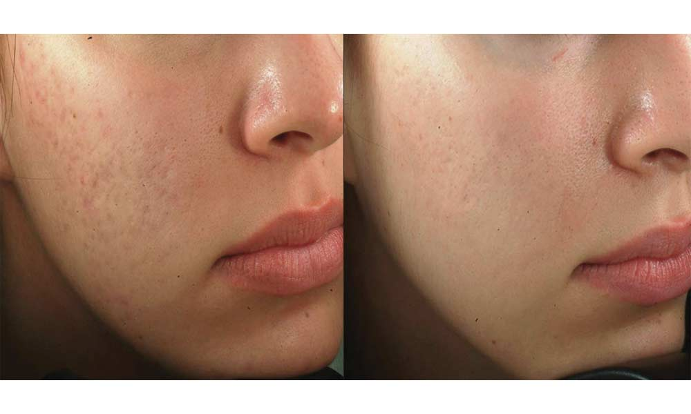 How To Get Rid Of Deep Acne Scars Overnight 2020 Easy Method