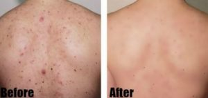 How To Get Rid Of Back Acne Scars Quickly Easily 2020 Update