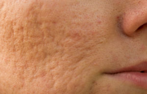 getting rid of deep acne scars quickly