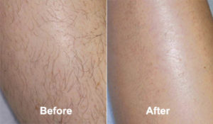 Best Permanent Hair Removal Cream That Works In 2020 Update