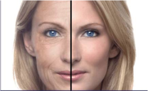 aging skin over 60