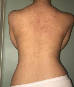 acne scars back removal fast