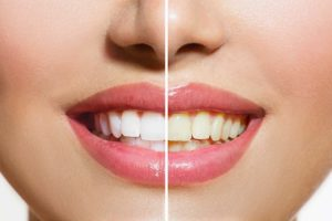 one day tooth whitening